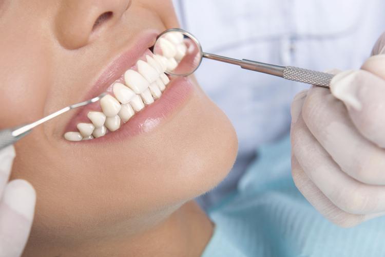 Carillas dentales: cerámica o composite. ¿Cuál se adapta mejor a mi sonrisa?