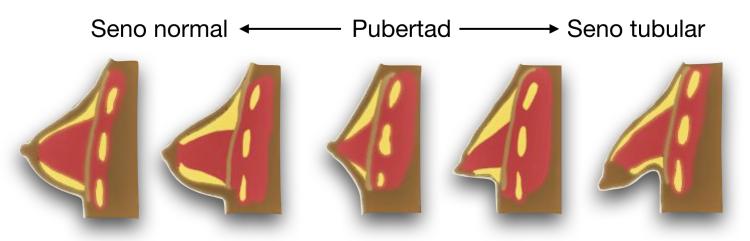 infografia-seno-tuberoso