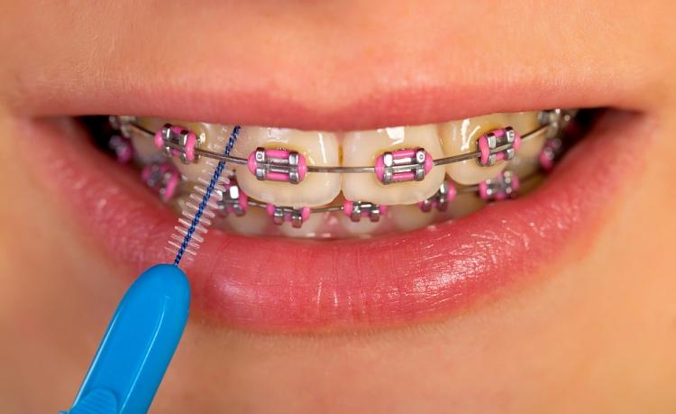 Limpia tu ortodoncia 7f93ce136932