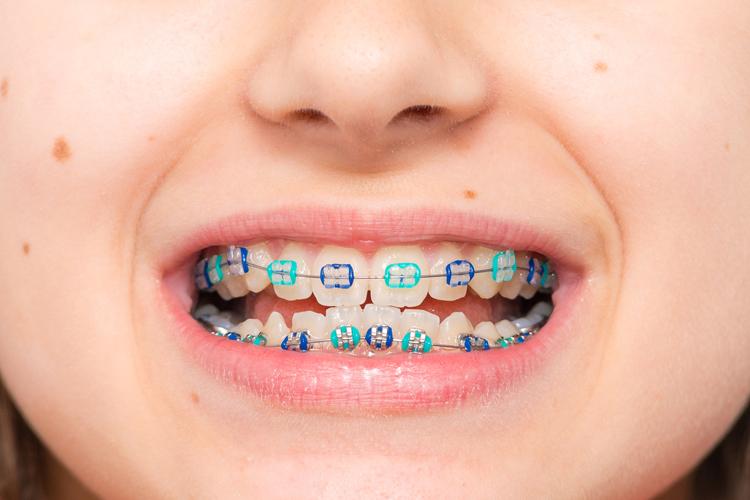 Ortodoncia en niños: ¿espero a que le salgan los dientes definitivos?