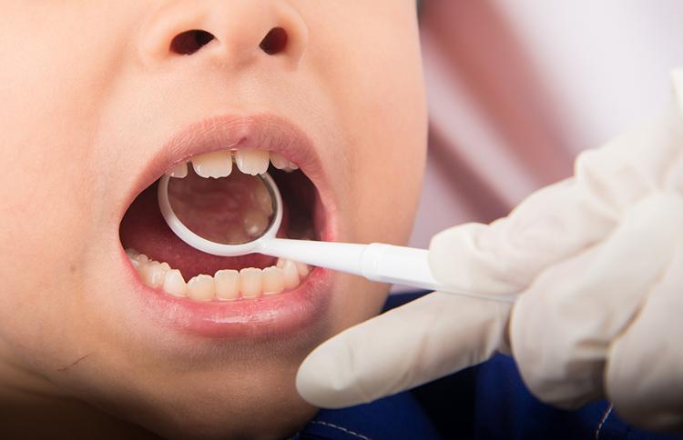 Fisuras y fosas dentales