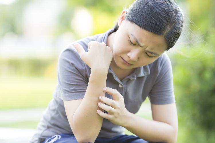 ¿Cómo prevenir y tratar las picaduras de mosquitos?