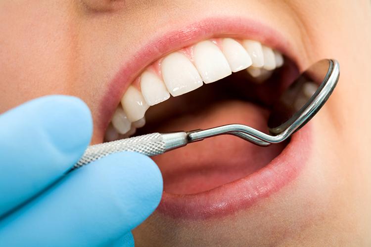 Bacterias dentales