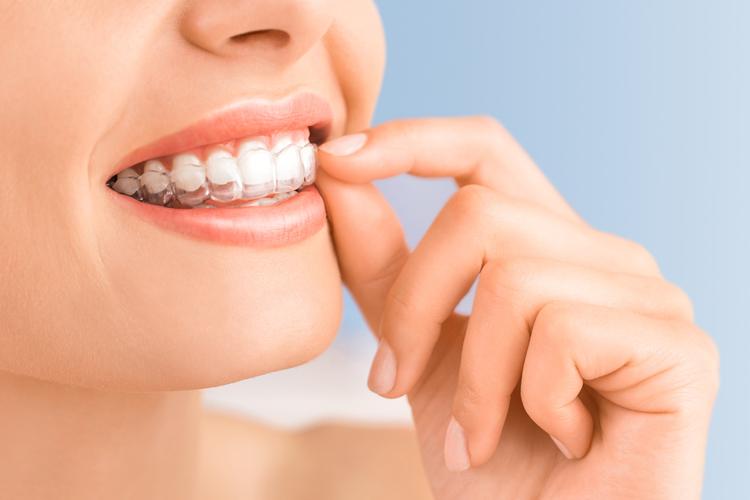 ¿Todas las ortodoncias son igual de efectivas?