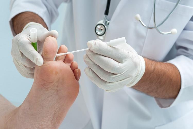 Antifúngico en el pie