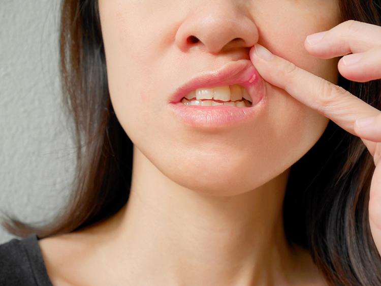 Úlcera en la boca