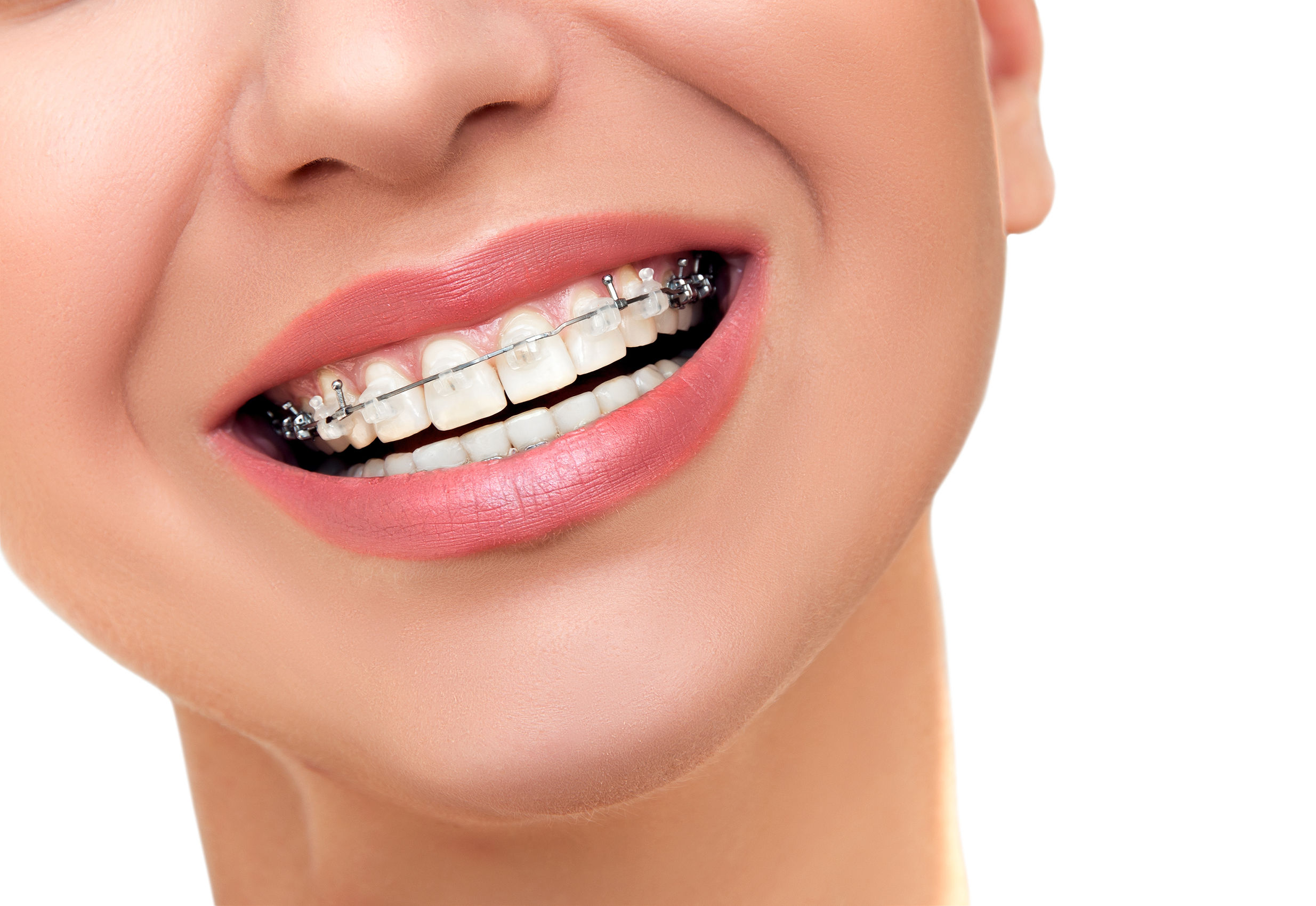 ortodoncia Damon Clear