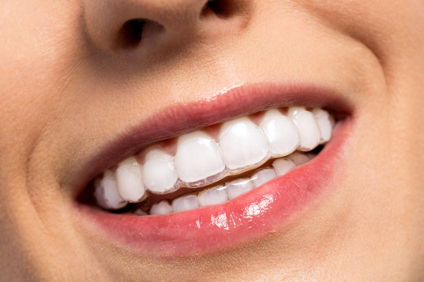 Tipos de ortodoncias