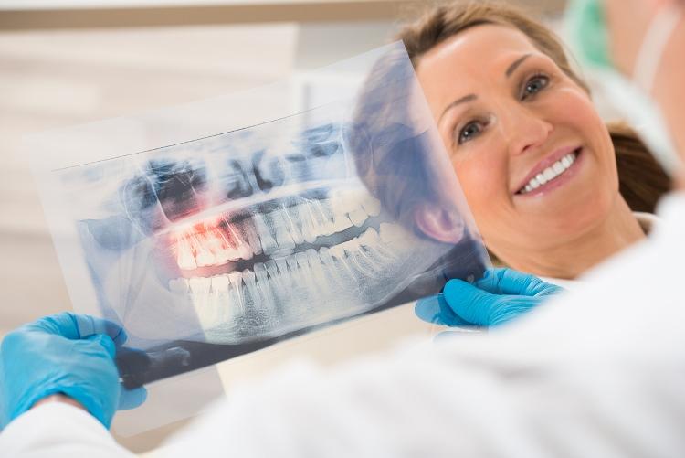 Regeneración de los dientes con láser