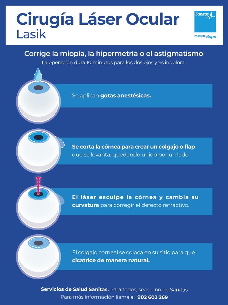Cirugía láser ocular Sanitas