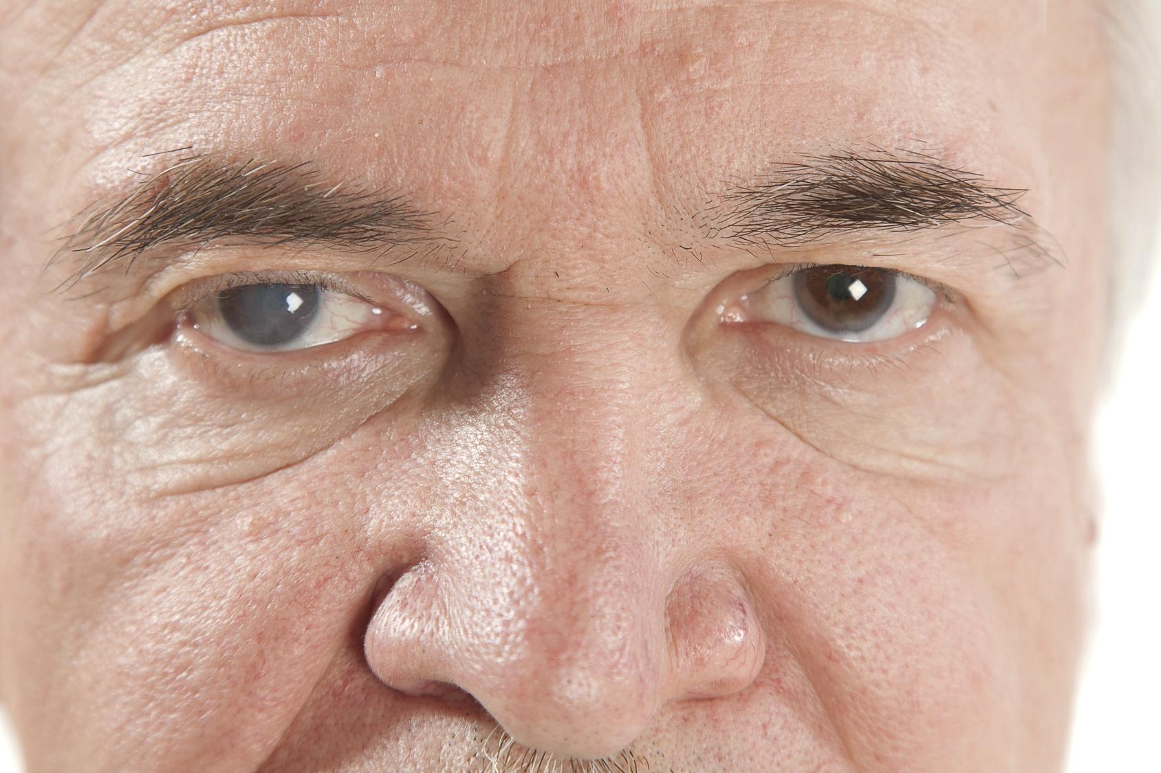 Presión elevada después de la cirugía de cataratas